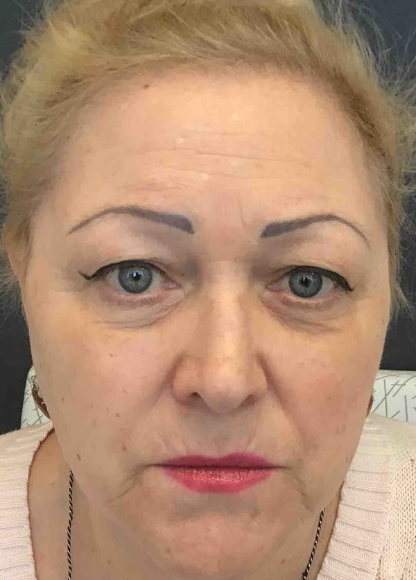 Fillers Gallery - Patient 10839904 - Image 2