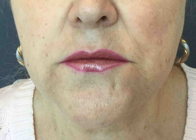 Fillers Gallery - Patient 10603103 - Image 2