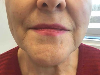 Fillers Gallery - Patient 10603103 - Image 1