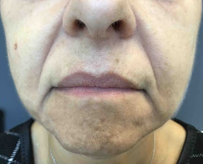 Fillers Gallery - Patient 10603104 - Image 1
