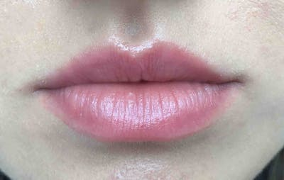 Fillers Gallery - Patient 10603107 - Image 1