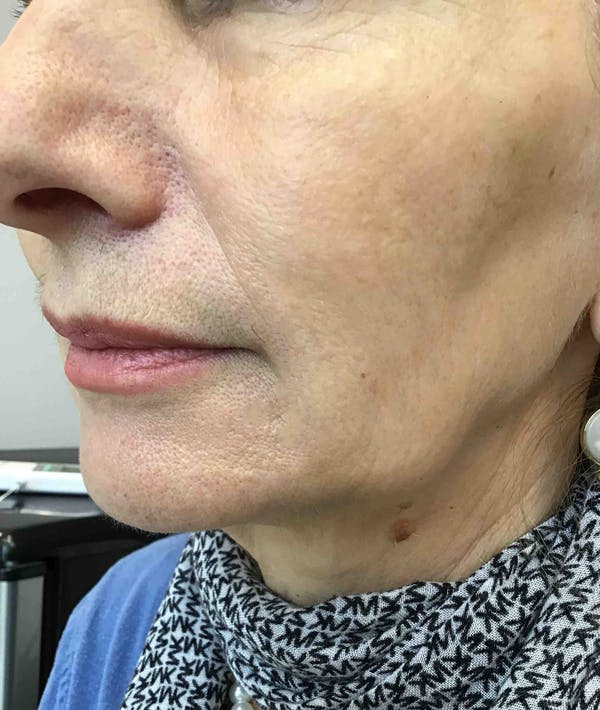 Laser Rejuvenation Gallery - Patient 10603174 - Image 2