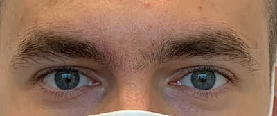 Permanent makeup Gallery - Patient 10670334 - Image 1