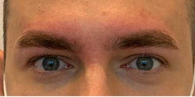 Permanent makeup Gallery - Patient 10670334 - Image 2