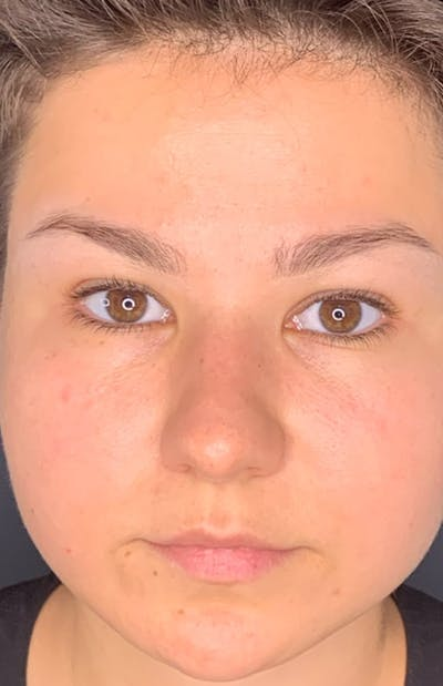 Permanent makeup Gallery - Patient 10670335 - Image 1