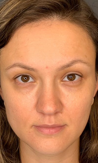 Permanent makeup Gallery - Patient 10670336 - Image 1