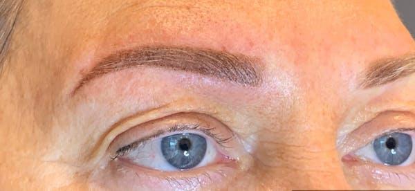 Permanent makeup Gallery - Patient 10670337 - Image 2