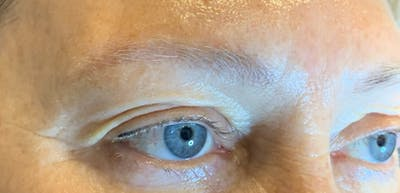 Permanent makeup Gallery - Patient 10670337 - Image 1