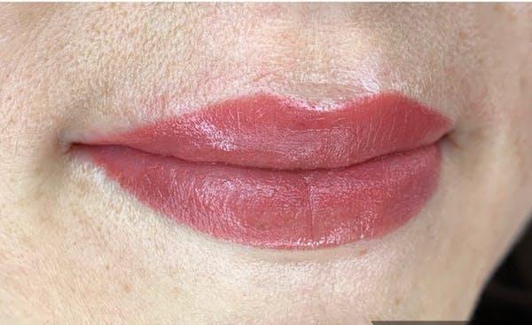 Permanent makeup Gallery - Patient 10670338 - Image 2