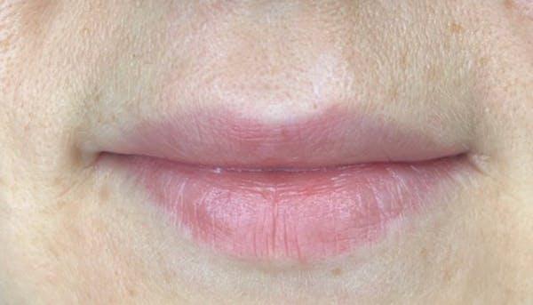 Permanent makeup Gallery - Patient 10670338 - Image 1