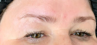 Permanent makeup Gallery - Patient 10670339 - Image 1