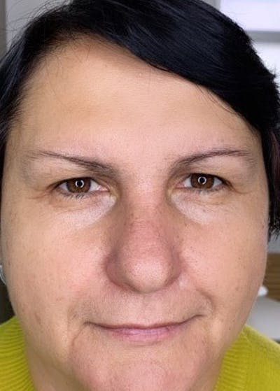 Permanent makeup Gallery - Patient 10670340 - Image 1