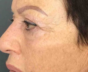 Before after after Sculptra in Brooklyn at Juno Medi Spa