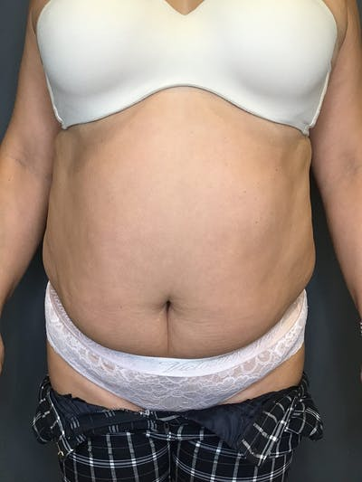 Body Contouring Gallery - Patient 10839854 - Image 1