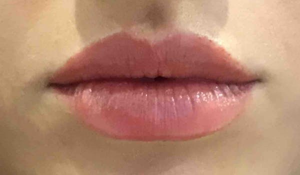 Fillers Gallery - Patient 10603106 - Image 4