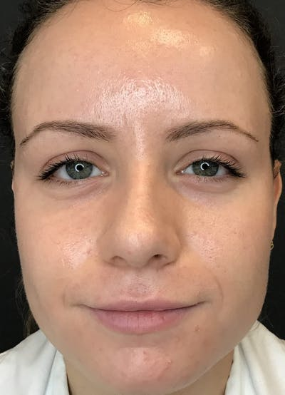 Fillers Gallery - Patient 10839913 - Image 1