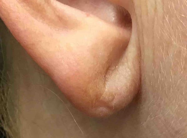 Fillers Gallery - Patient 10839914 - Image 3