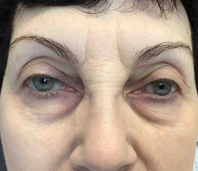 Fillers Gallery - Patient 10839915 - Image 1
