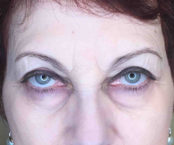 Fillers Gallery - Patient 10839915 - Image 2