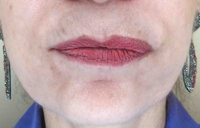 Fillers Gallery - Patient 11187101 - Image 1