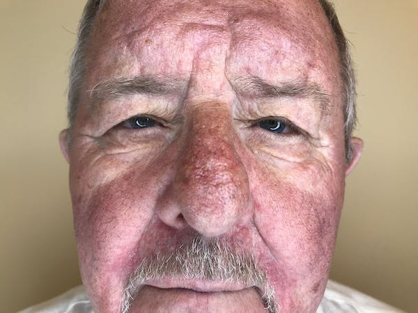 Blepharoplasty Gallery - Patient 15238627 - Image 1