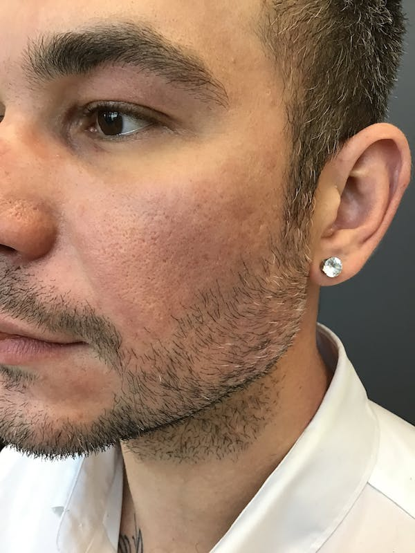 Fillers Gallery - Patient 15238877 - Image 2