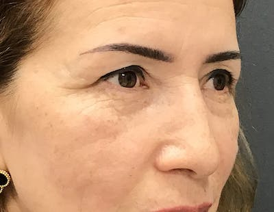 Blepharoplasty Gallery - Patient 16382475 - Image 1