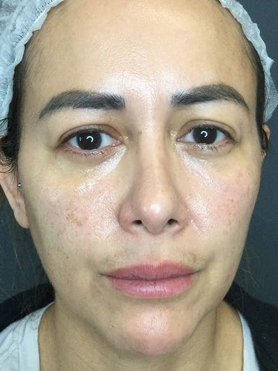 Fillers Gallery - Patient 18728188 - Image 1
