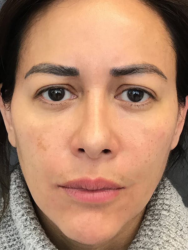 Fillers Gallery - Patient 18728188 - Image 2