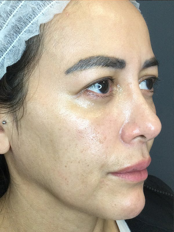 Fillers Gallery - Patient 18728188 - Image 3