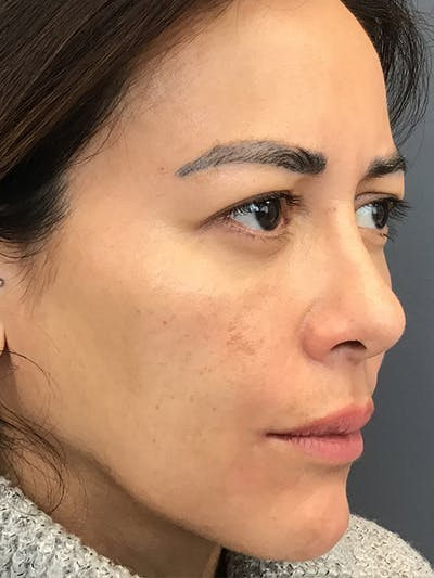 Fillers Gallery - Patient 18728188 - Image 4