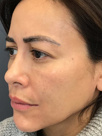 Fillers Gallery - Patient 18728188 - Image 6
