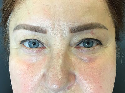 Blepharoplasty Gallery - Patient 14969321 - Image 1