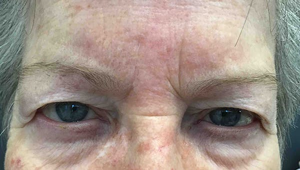 Blepharoplasty Gallery - Patient 18728259 - Image 1