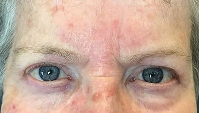 Blepharoplasty Gallery - Patient 18728259 - Image 2