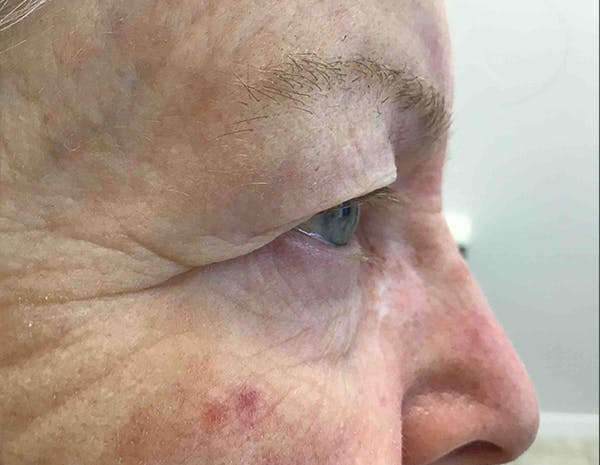 Blepharoplasty Gallery - Patient 18728259 - Image 3