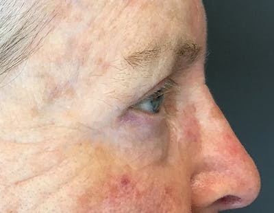 Blepharoplasty Gallery - Patient 18728259 - Image 4