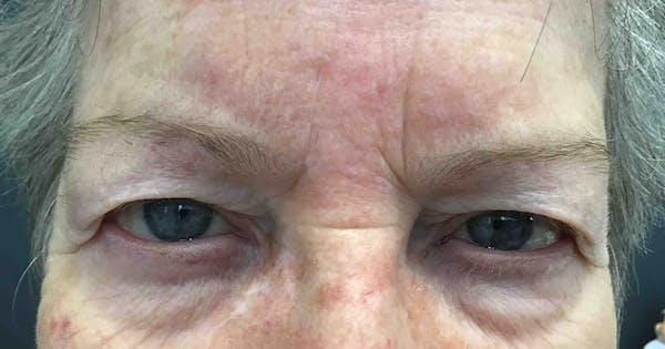 Botox Gallery - Patient 20544161 - Image 1