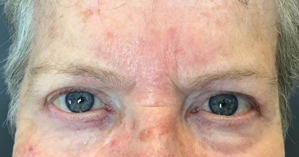 Botox Gallery - Patient 20544161 - Image 2