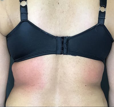 Body Contouring Gallery - Patient 24319647 - Image 2