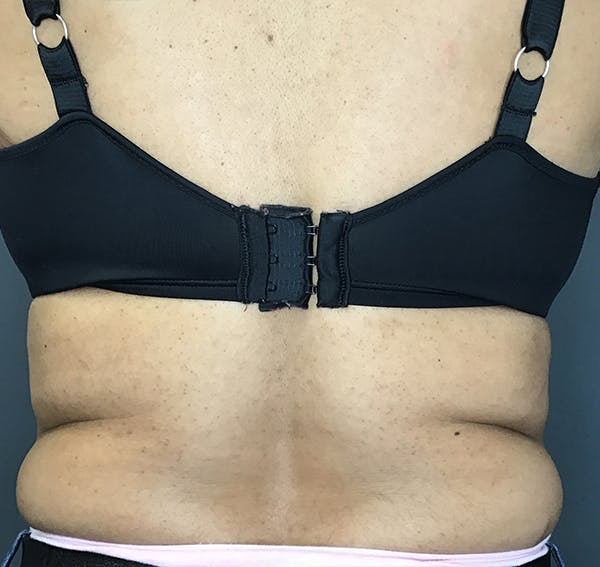 Body Contouring Gallery - Patient 24319647 - Image 3