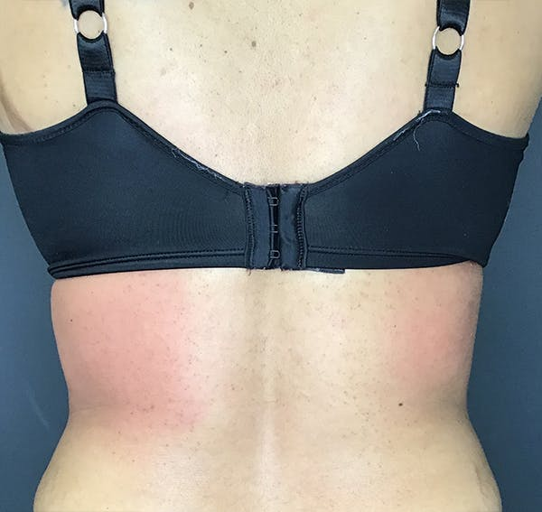 Body Contouring Gallery - Patient 24319647 - Image 4