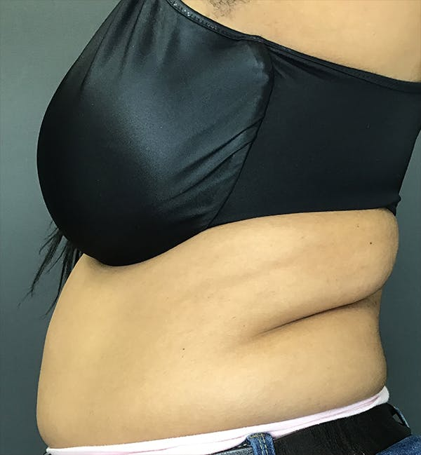 Body Contouring Gallery - Patient 24319647 - Image 5
