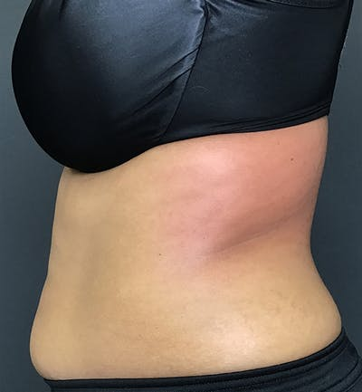Body Contouring Gallery - Patient 24319647 - Image 6