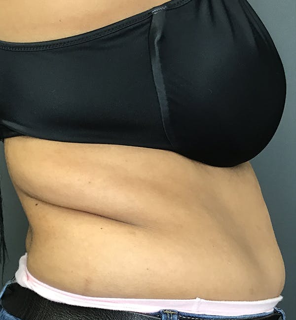 Body Contouring Gallery - Patient 24319647 - Image 7