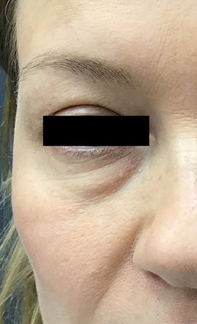 Blepharoplasty Gallery - Patient 24320035 - Image 1