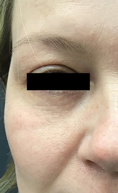 Blepharoplasty Gallery - Patient 24320035 - Image 2
