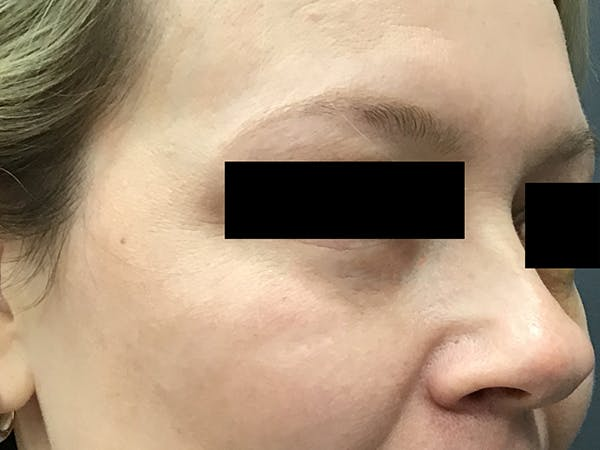 Blepharoplasty Gallery - Patient 24320035 - Image 4