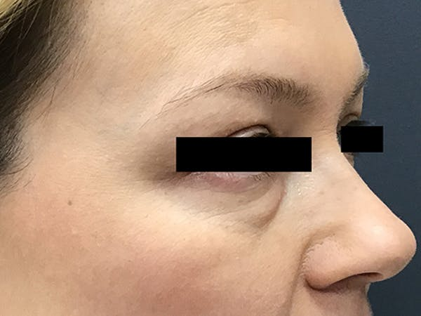 Blepharoplasty Gallery - Patient 24320035 - Image 3