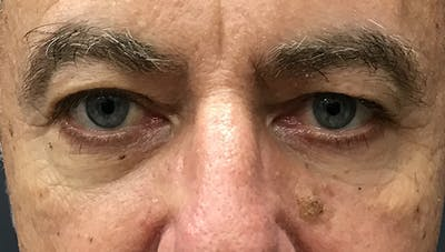 Blepharoplasty Gallery - Patient 24396897 - Image 1